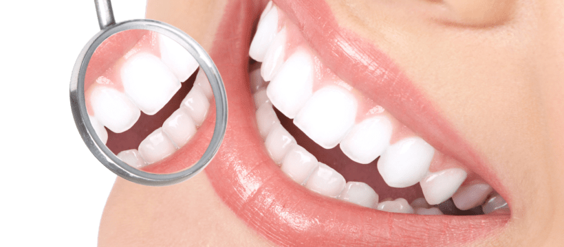 Benefits of Having Dental Insurance